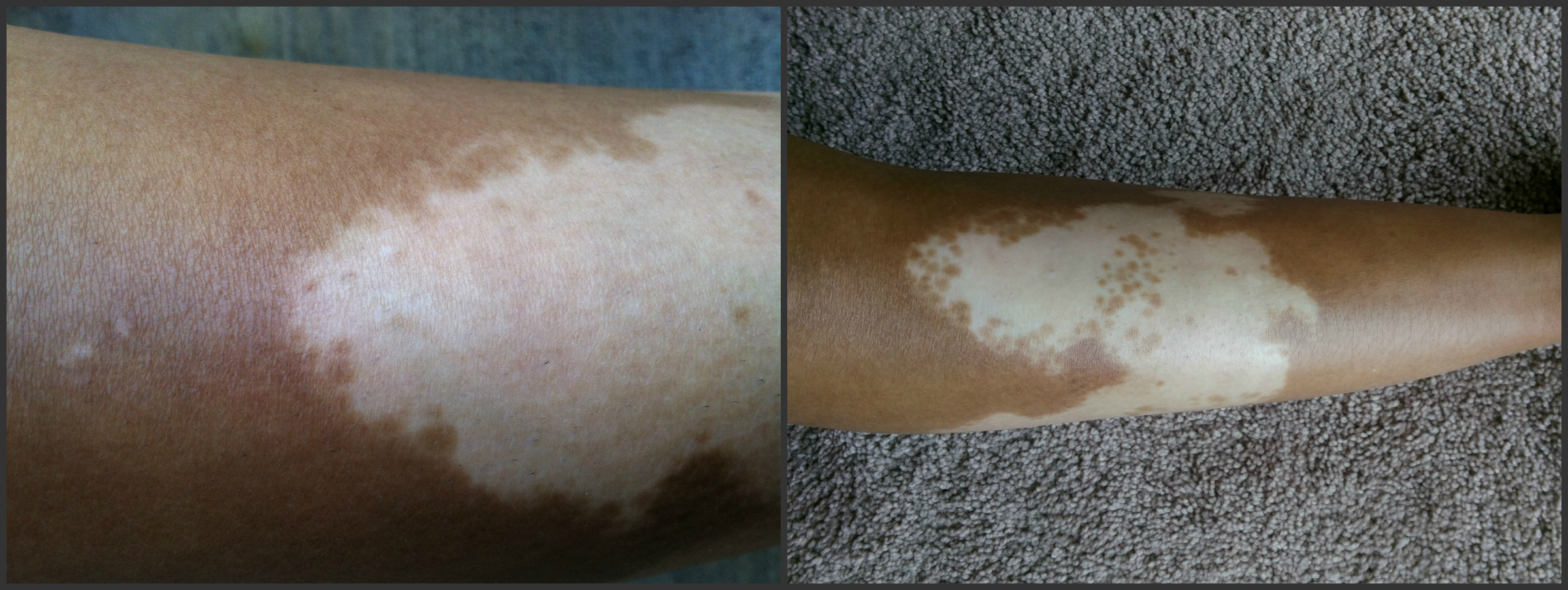 Right Shin Before And After N