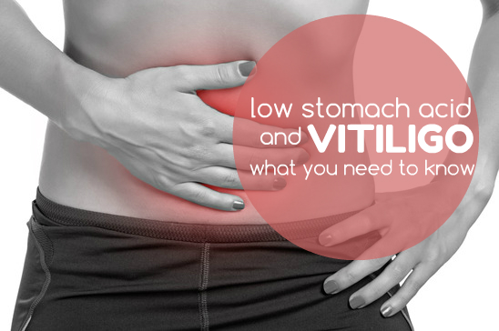 Low Stomach Acid and Vitiligo – What You Need to Know