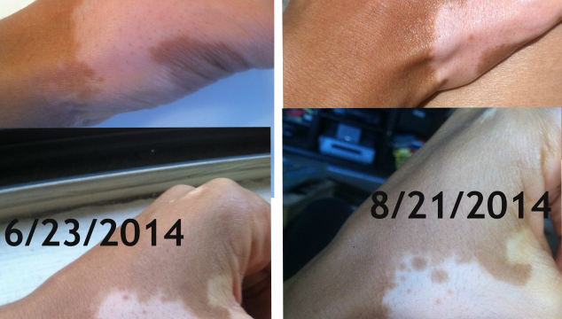 Vitiligo Natural Treatment Repigmentation Update