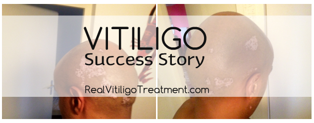 Vitiligo Success Story – Gary Giovanni