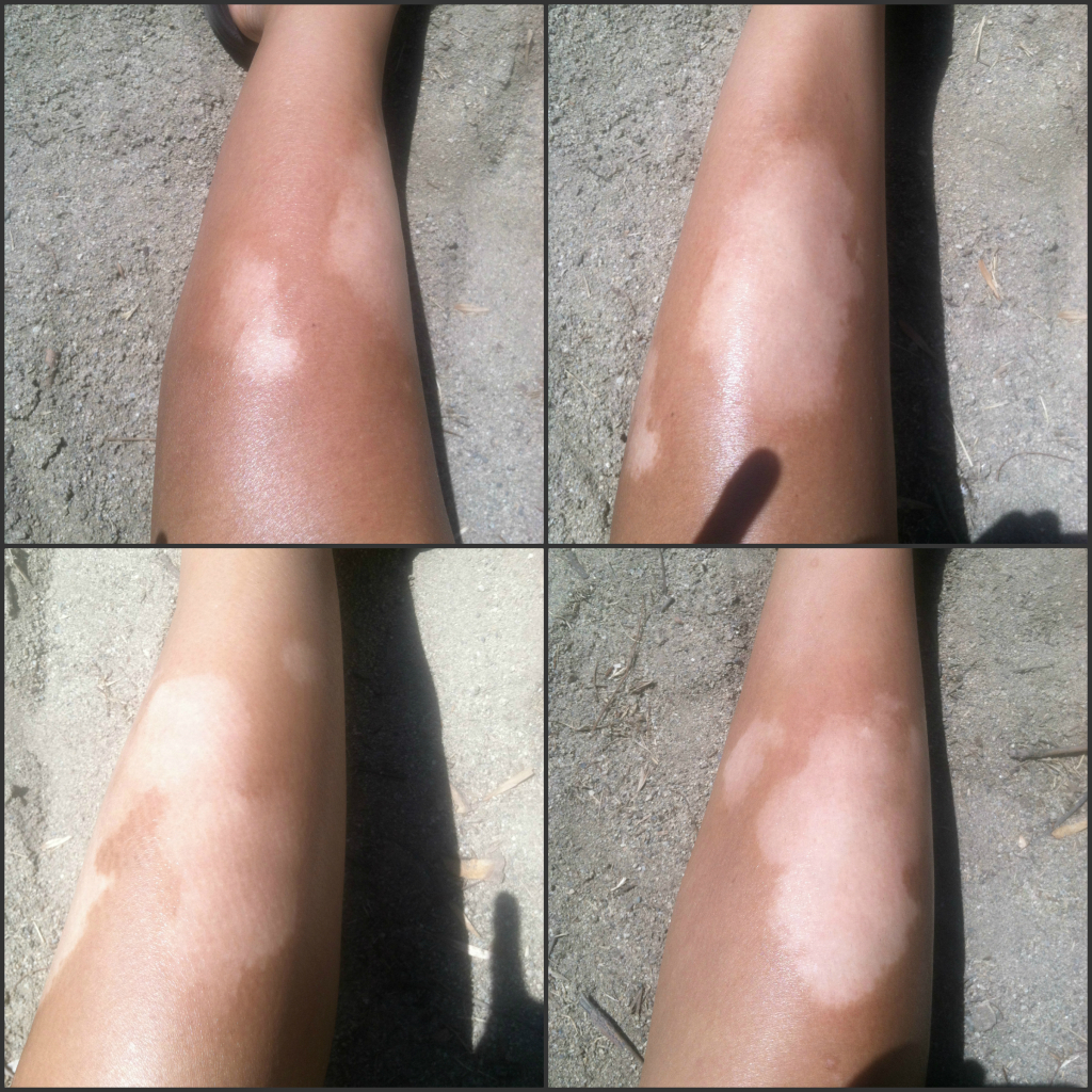 August 2014 vitiligo pictures