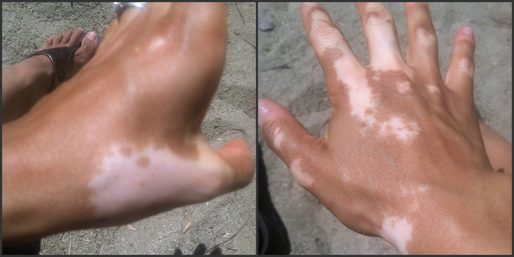 august 2014 2 vitiligo pictures