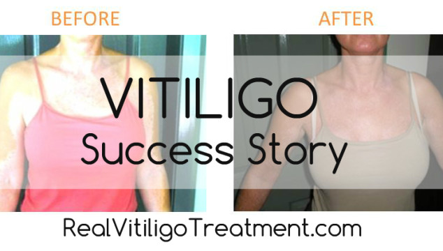Vitiligo Repigmentation Success Story – Caroline H.